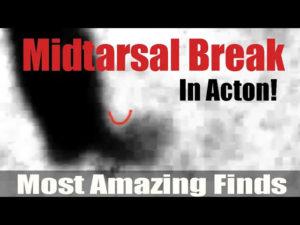 Bigfoot Most Amazing Finds #1 - Midtarsal Break